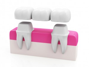 Dental Bridge Concept